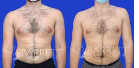 5 Life-Changing Advantages of Gynecomastia Surgery
